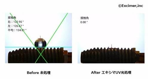 インプラントエキシマ光処理before after